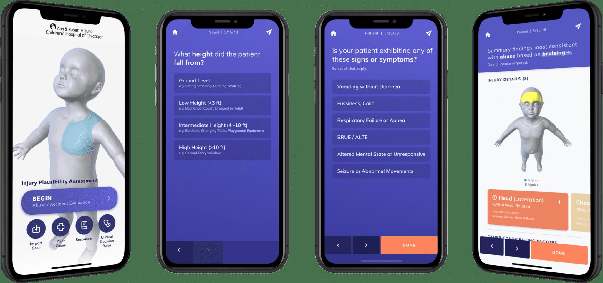 Mobile Luries screen long